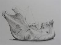 Mandible Bone Sample
